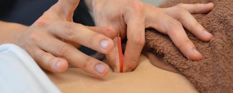 鍼灸コース